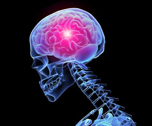 Работу мозга надо стимулировать!